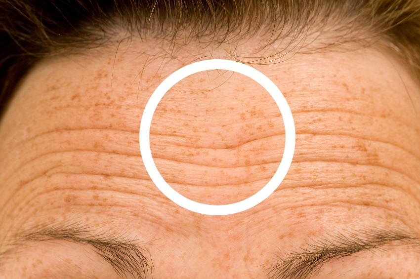 how to remove smile wrinkles