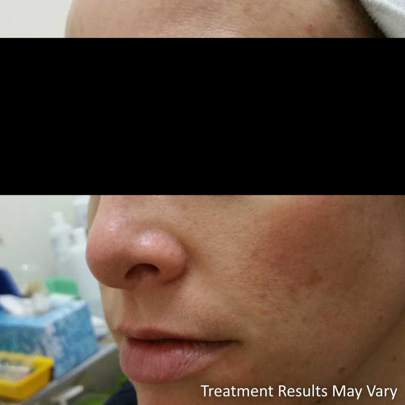 beautify-sa-cassie-acne-scar-reduction-1