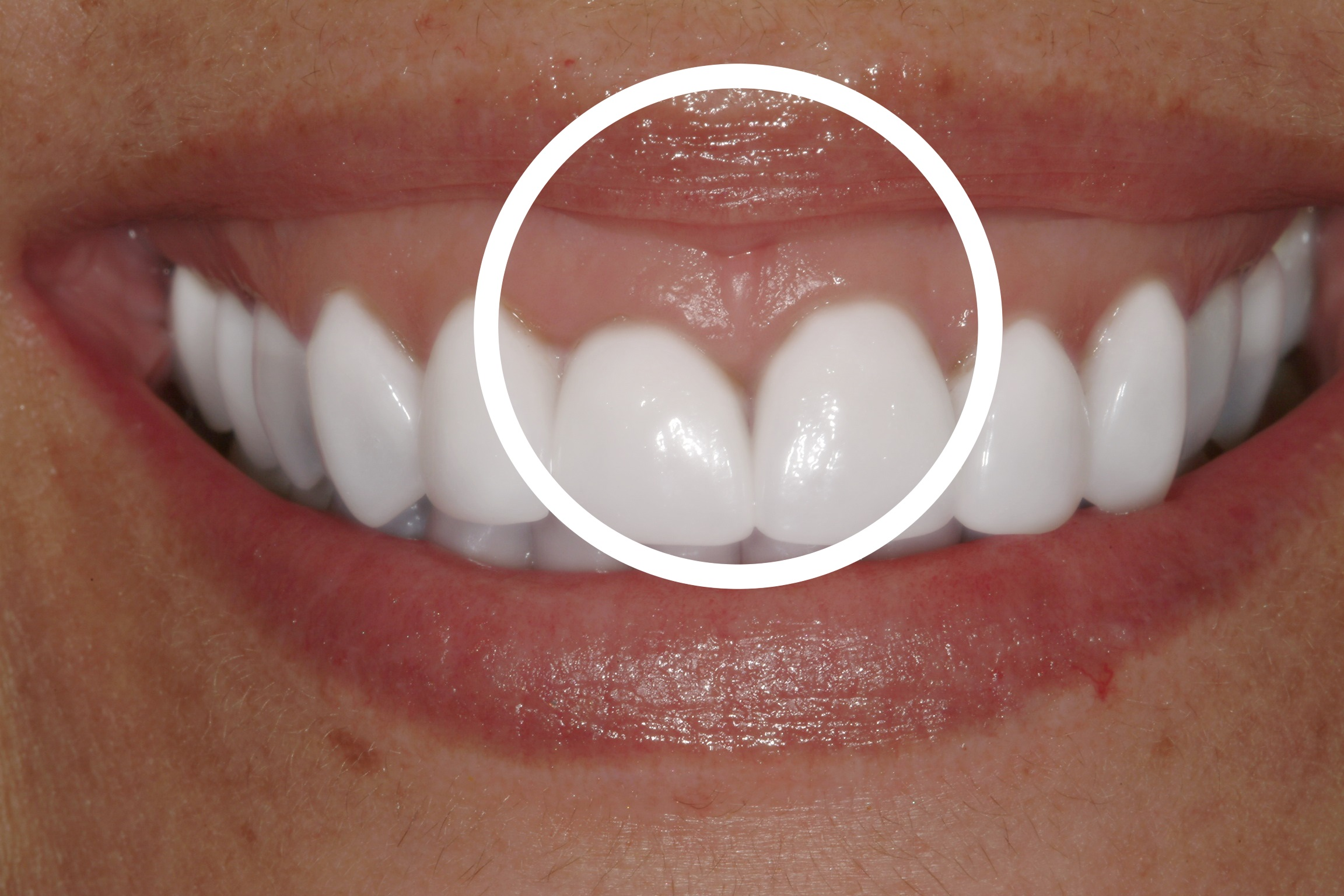 Remove Stress Lines Forehead Gummy Smile Gums Showing Concern